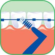 Zahnpflege Zahnspange