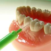 Zahnpflege bei Parodontitis